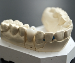 Zahnersatz in der Zahnarztpraxis dentteam in Köln